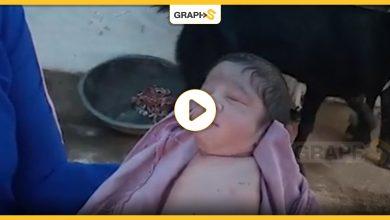 ولادة طفلة بدون أطرافها الأربعة