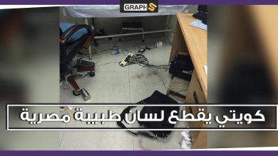 مواطن كويتي يعتدي على طبيبة مصرية