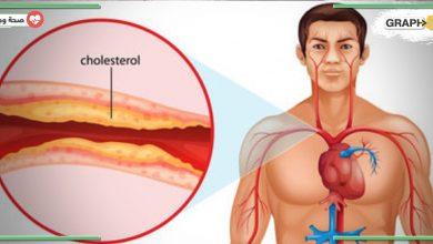 أعراض ارتفاع مستوى الكوليسترول في الدم