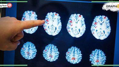 سرطان دماغ نادر