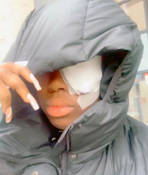 شاحن جوال يتسبب بفقدان البصر