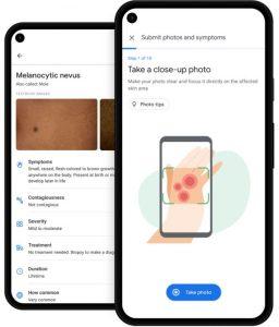 كشف الأمراض الجلدية عن طريق غوغل