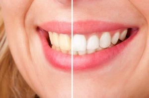 أسهل الحلول لـ تبييض الأسنان