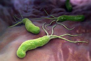 طرق طبيعية لـ علاج جرثومة المعدة