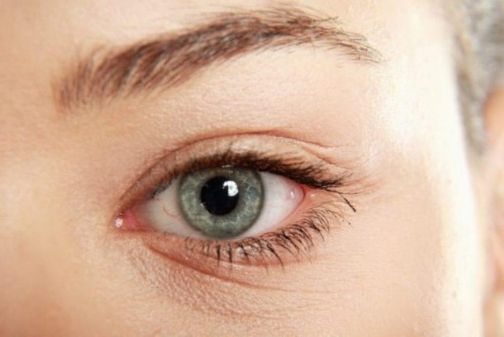 طرق بمكونات المطبخ للخلاص من تجاعيد حول العينين