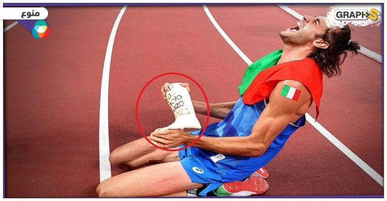 قطعة جبس لم تفارق اللاعب الإيطالي تامبيري أثناء منافسته لاعبنا العربي معتز برشم