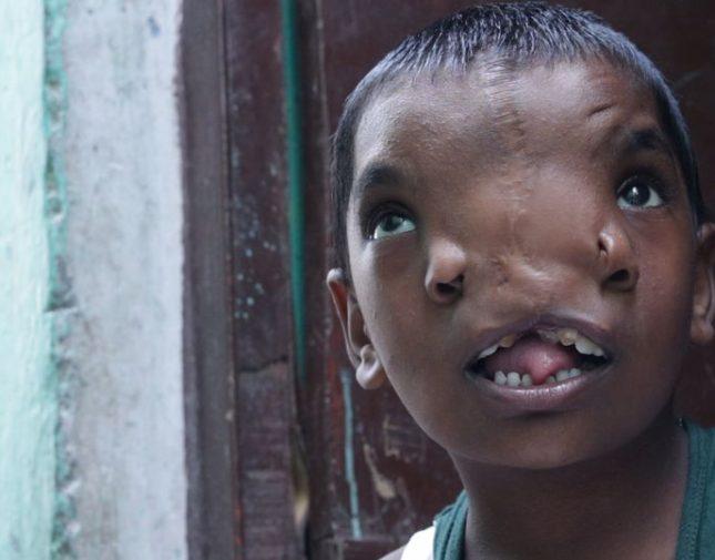 شاهد: صغيرة في الهند لها أنفين تتحول لآلهة يقدسها الأهالي
