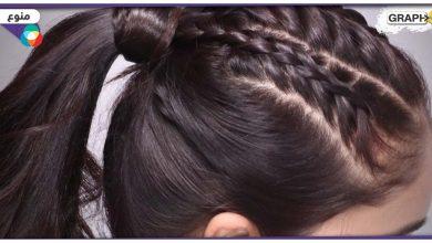 استخراج 6 كلغ شعر من بطن فتاة مريضة في الأردن